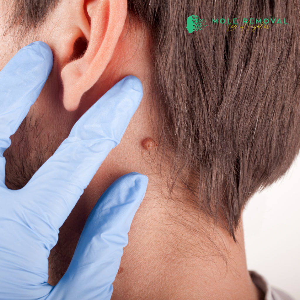 mole removal beverly hills