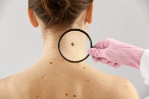 best mole removal pasadena