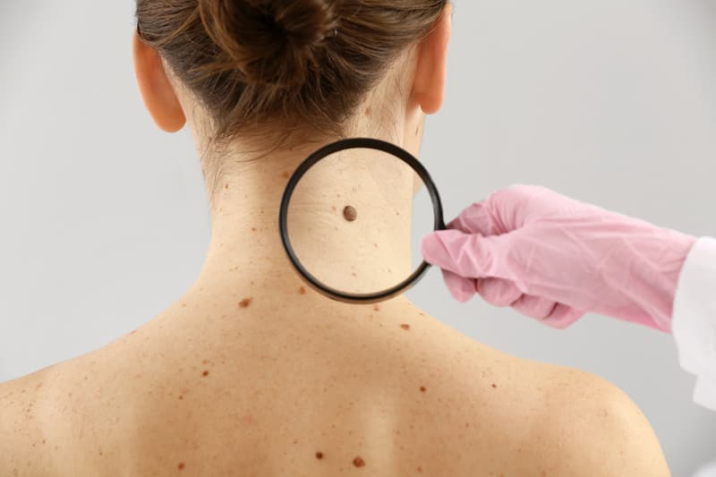 mole removal pasadena